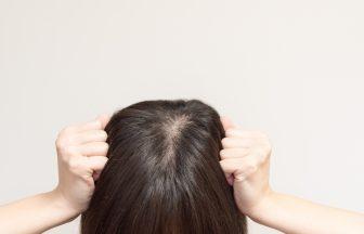 つむじ&頭頂部の薄毛に効果あり!おすすめ女性用育毛剤5選を徹底解説!